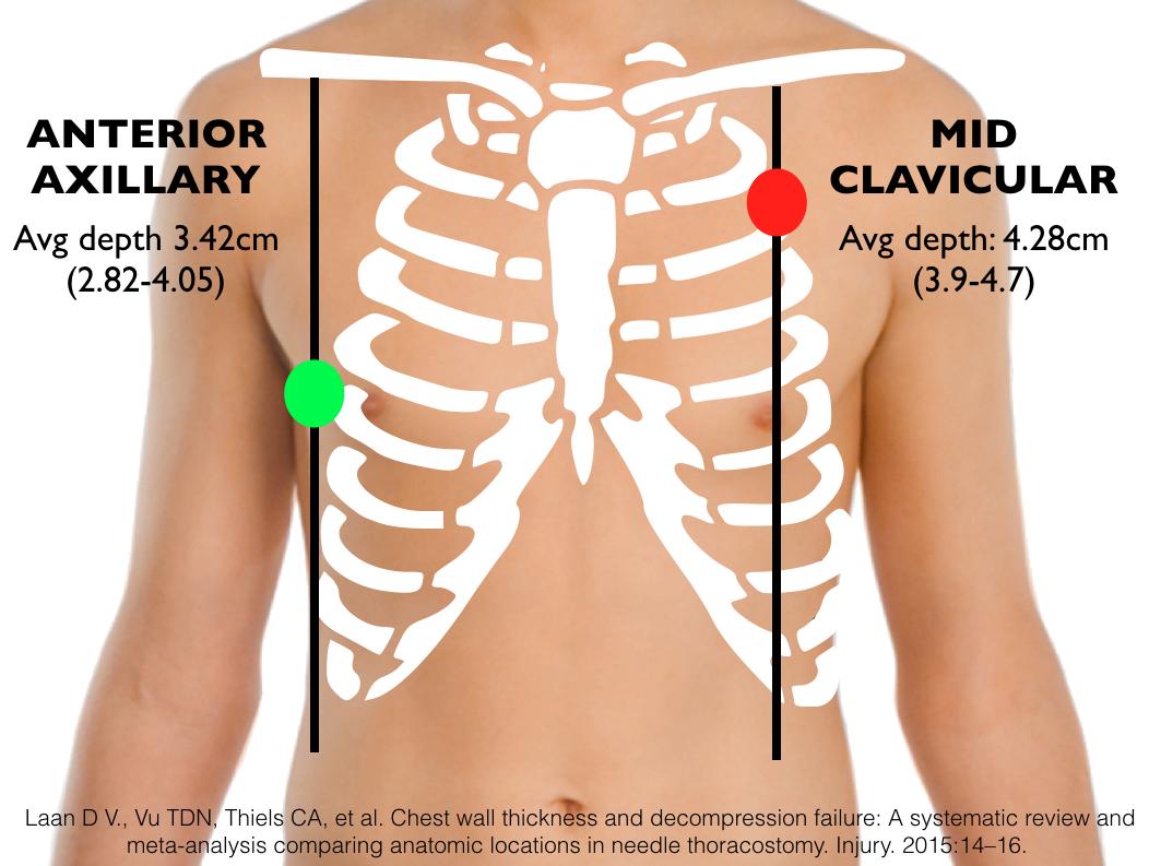 Episode 36 – Pneumothorax | FOAMcast